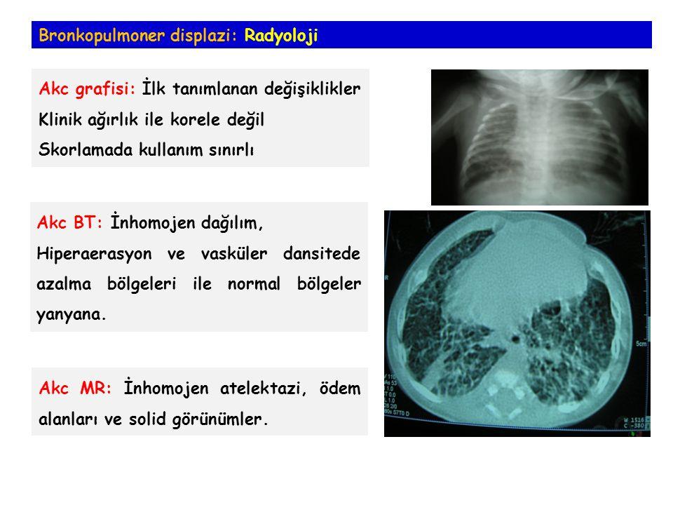 Bronkopulmoner displazi: Radyoloji Akc grafisi: İlk tanımlanan değişiklikler Klinik ağırlık ile korele değil Skorlamada kullanım sınırlı Akc BT: İnhomojen dağılım, Hiperaerasyon ve vasküler dansitede azalma bölgeleri ile normal bölgeler yanyana.