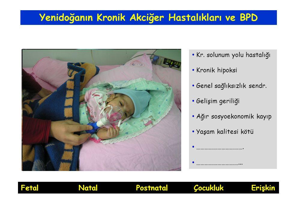 Yenidoğanın Kronik Akciğer Hastalıkları ve BPD Kr.