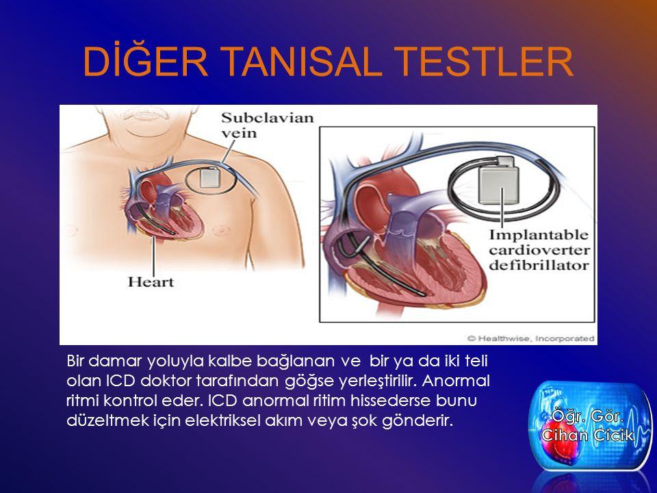 DİĞER TANISAL TESTLER Bir damar yoluyla kalbe bağlanan ve bir ya da iki teli olan ICD doktor tarafından göğse yerleştirilir. Anormal ritmi kontrol ede