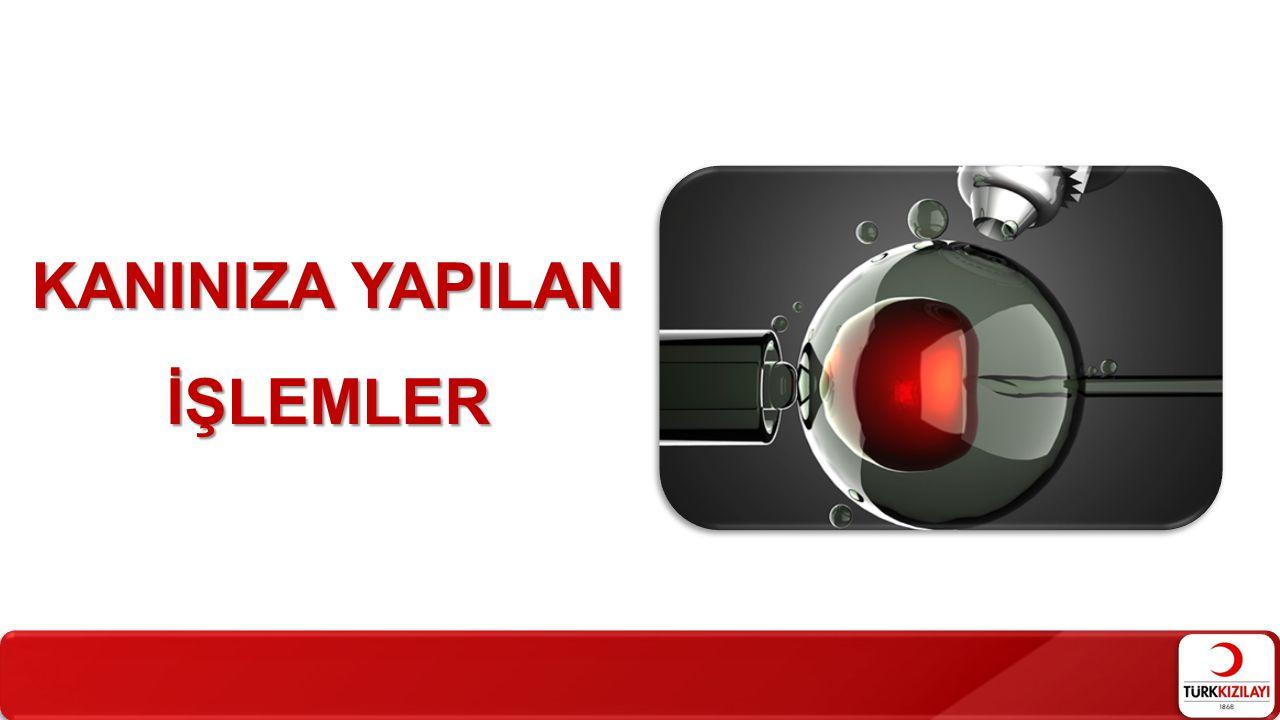KANINIZA YAPILAN İŞLEMLER