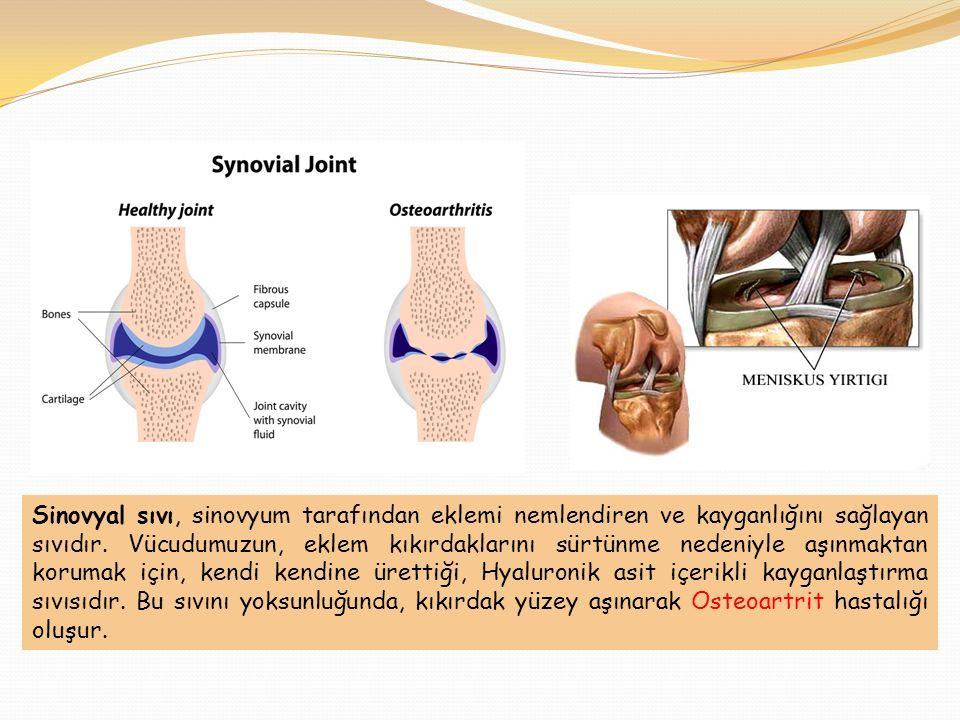 Sinovyal sıvı, sinovyum tarafından eklemi nemlendiren ve kayganlığını sağlayan sıvıdır. Vücudumuzun, eklem kıkırdaklarını sürtünme nedeniyle aşınmakta