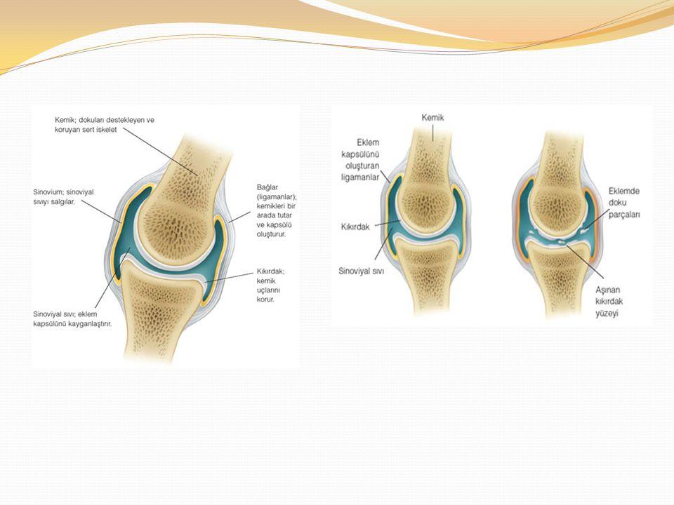 SİNOVYAL SIVI (EKLEM SIVISI) Artrosentezle elde edilelen sinovyal sıvı analizi eklem hastalıklarının tanısında kullanılır.