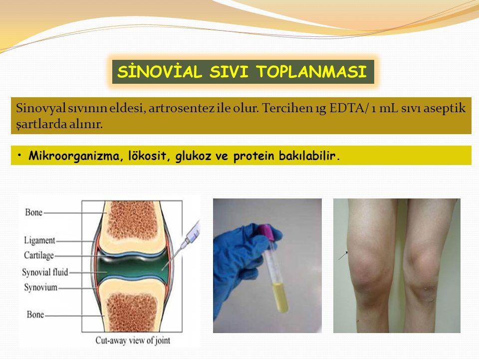 Mikroorganizma, lökosit, glukoz ve protein bakılabilir. SİNOVİAL SIVI TOPLANMASI Sinovyal sıvının eldesi, artrosentez ile olur. Tercihen 1g EDTA/ 1 mL