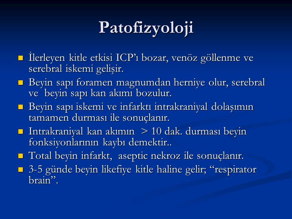 Patofizyoloji İlerleyen kitle etkisi ICP'ı bozar, venöz göllenme ve serebral iskemi gelişir. İlerleyen kitle etkisi ICP'ı bozar, venöz göllenme ve ser