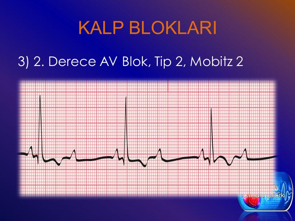 KALP BLOKLARI 3) 2. Derece AV Blok, Tip 2, Mobitz 2