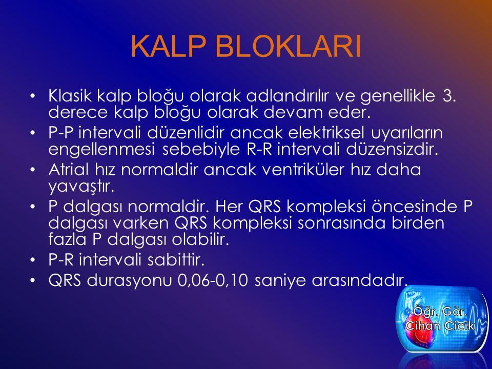 KALP BLOKLARI Klasik kalp bloğu olarak adlandırılır ve genellikle 3. derece kalp bloğu olarak devam eder. P-P intervali düzenlidir ancak elektriksel u