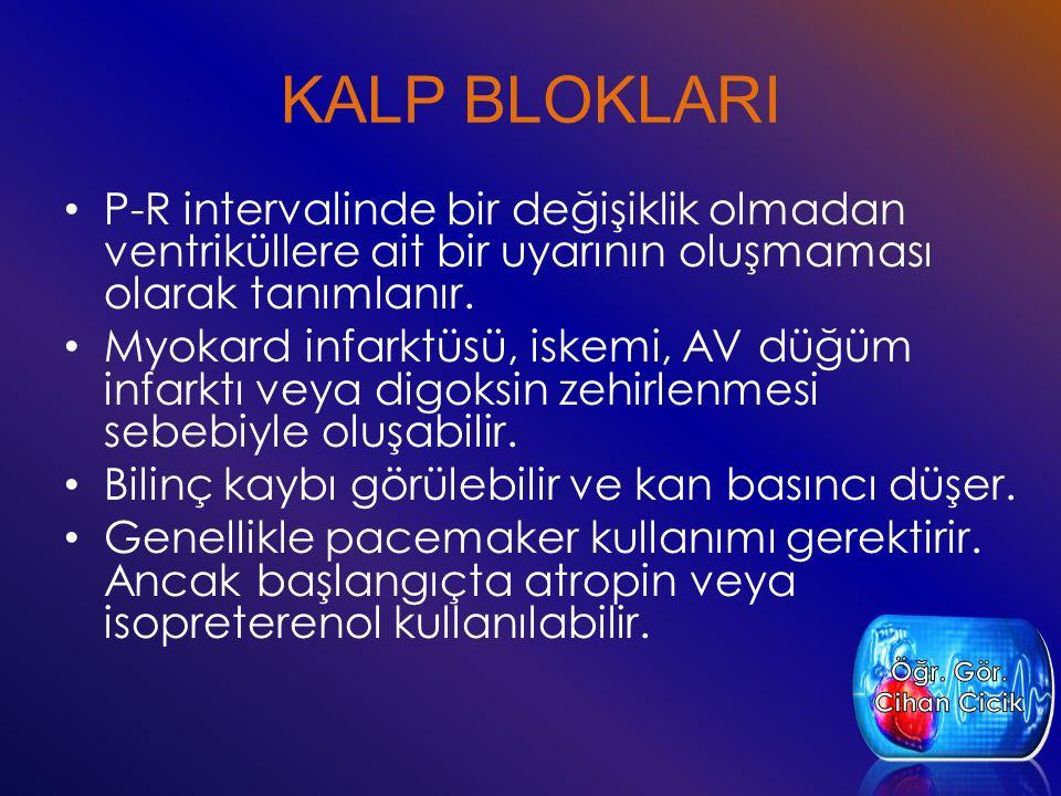 KALP BLOKLARI P-R intervalinde bir değişiklik olmadan ventriküllere ait bir uyarının oluşmaması olarak tanımlanır. Myokard infarktüsü, iskemi, AV düğü