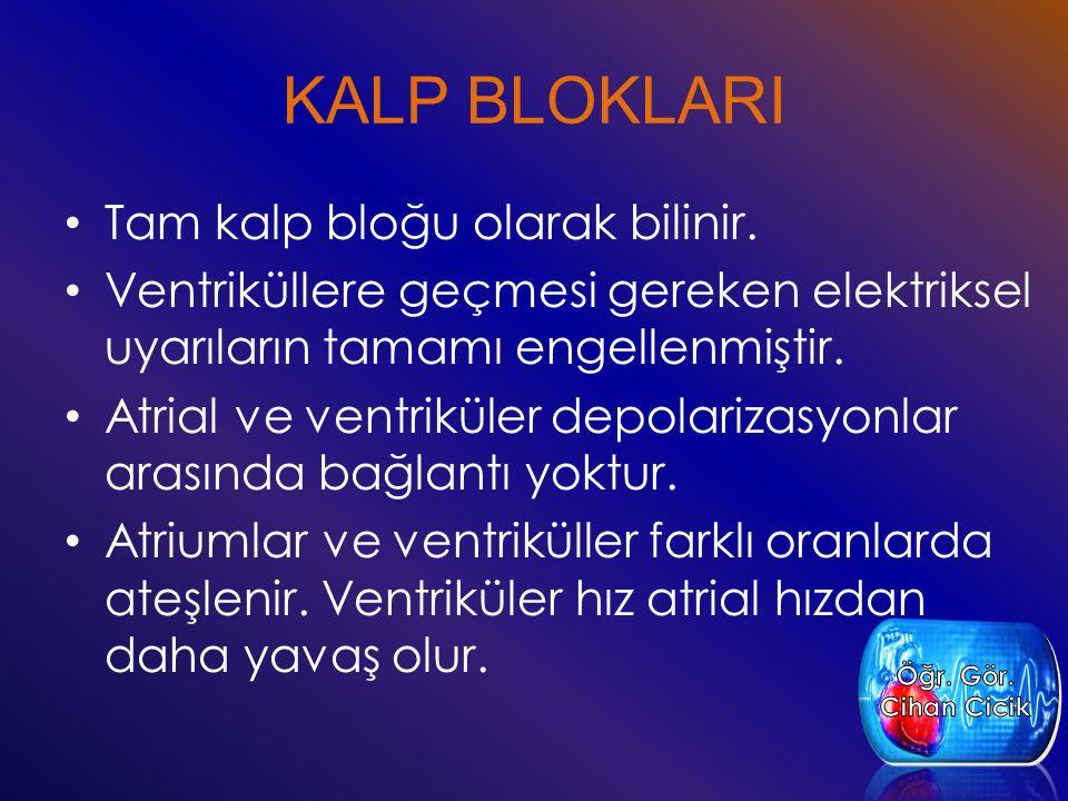 KALP BLOKLARI Tam kalp bloğu olarak bilinir. Ventriküllere geçmesi gereken elektriksel uyarıların tamamı engellenmiştir. Atrial ve ventriküler depolar
