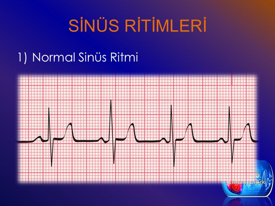 SİNÜS RİTİMLERİ 1)Normal Sinüs Ritmi