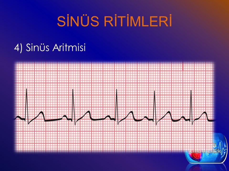 SİNÜS RİTİMLERİ 4) Sinüs Aritmisi