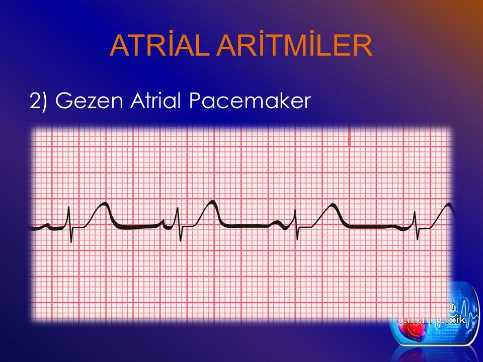 ATRİAL ARİTMİLER 2) Gezen Atrial Pacemaker