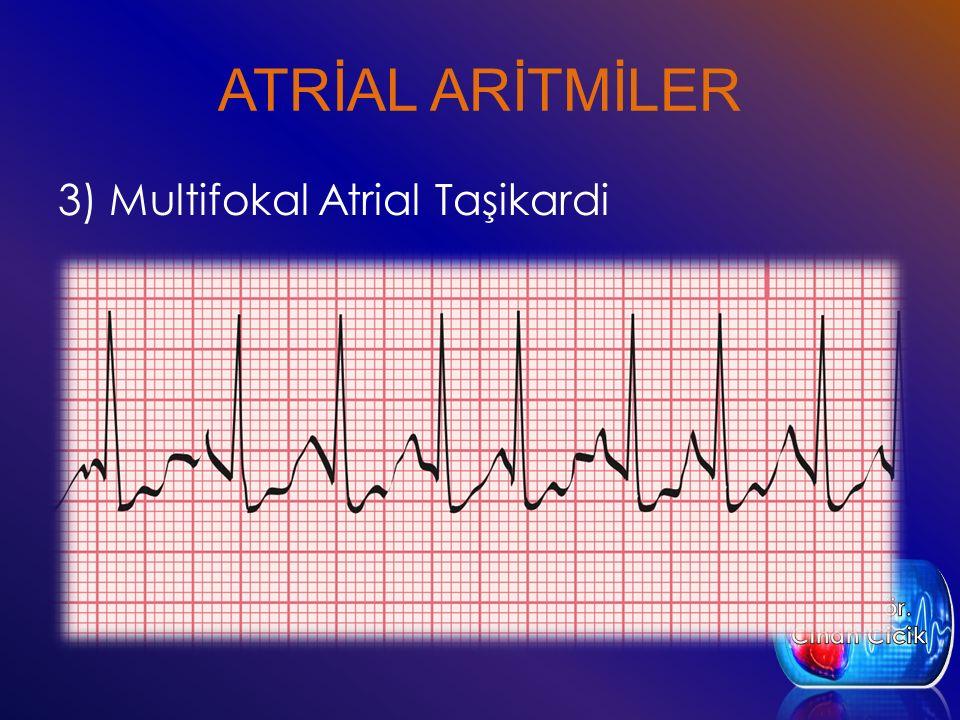 ATRİAL ARİTMİLER 3) Multifokal Atrial Taşikardi
