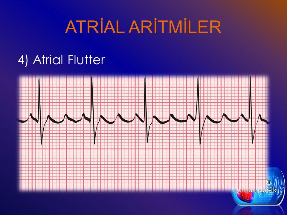 ATRİAL ARİTMİLER 4) Atrial Flutter
