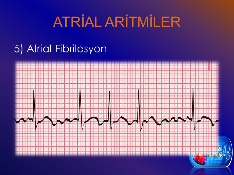 ATRİAL ARİTMİLER 5) Atrial Fibrilasyon