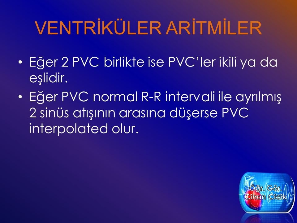 VENTRİKÜLER ARİTMİLER Eğer 2 PVC birlikte ise PVC'ler ikili ya da eşlidir. Eğer PVC normal R-R intervali ile ayrılmış 2 sinüs atışının arasına düşerse