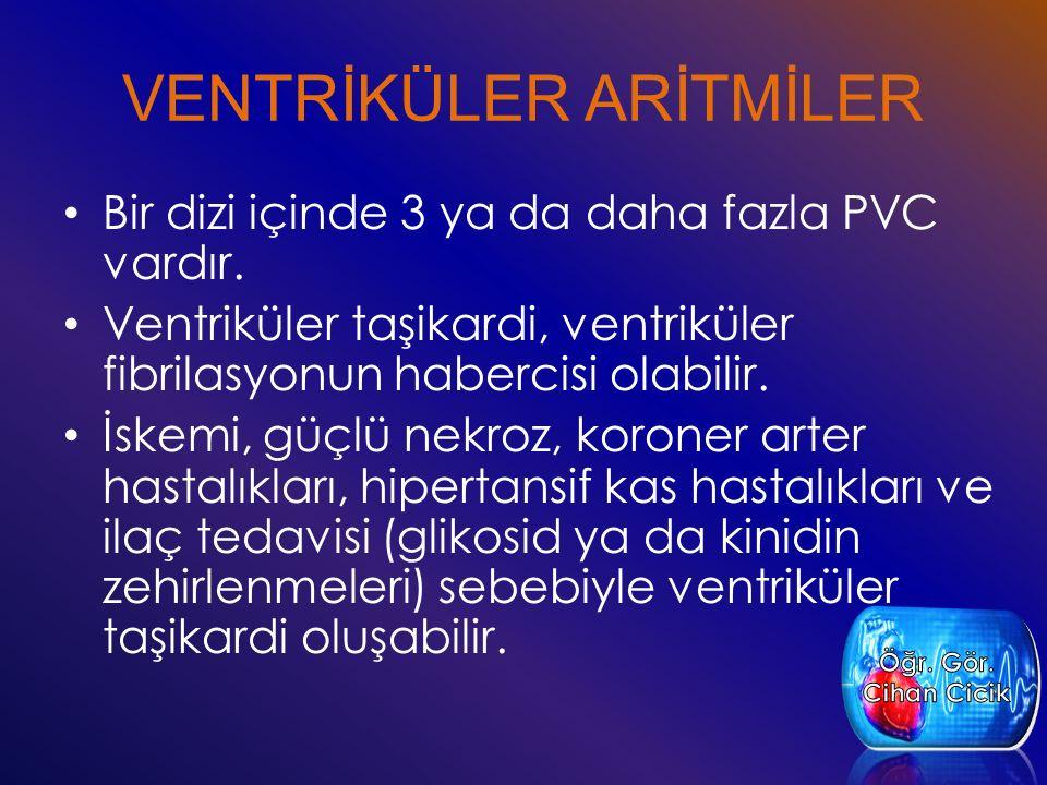 VENTRİKÜLER ARİTMİLER Bir dizi içinde 3 ya da daha fazla PVC vardır. Ventriküler taşikardi, ventriküler fibrilasyonun habercisi olabilir. İskemi, güçl