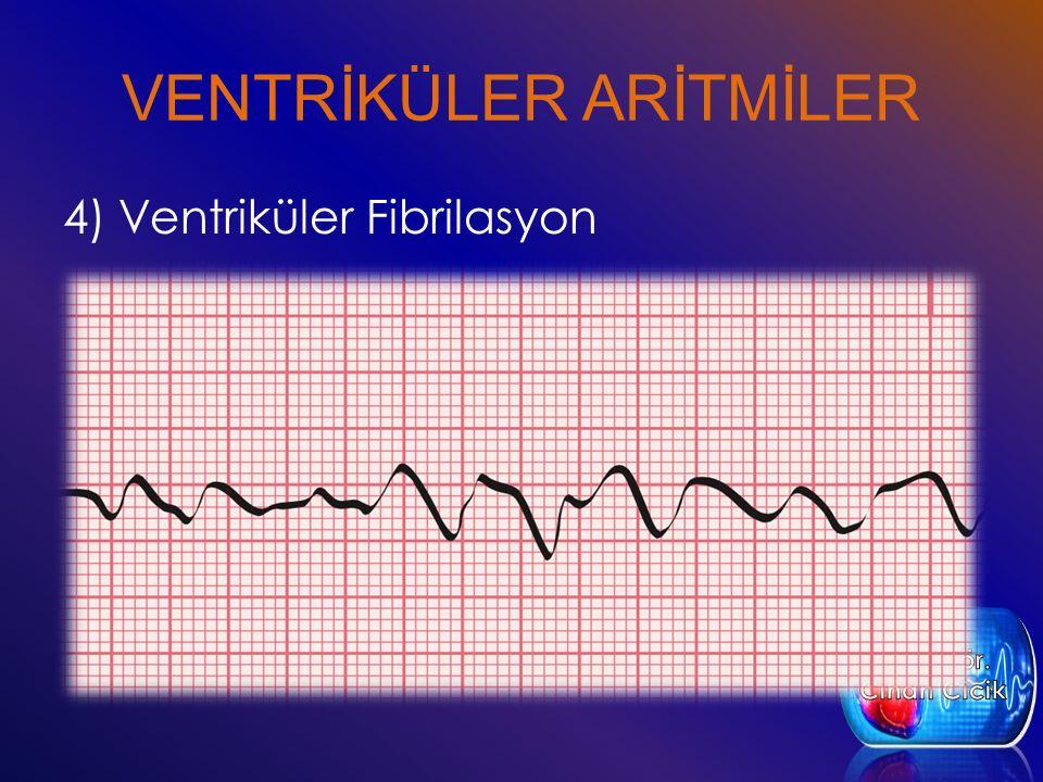 VENTRİKÜLER ARİTMİLER 4) Ventriküler Fibrilasyon