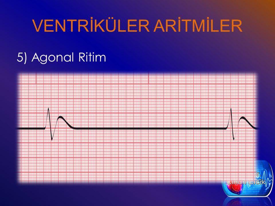 VENTRİKÜLER ARİTMİLER 5) Agonal Ritim