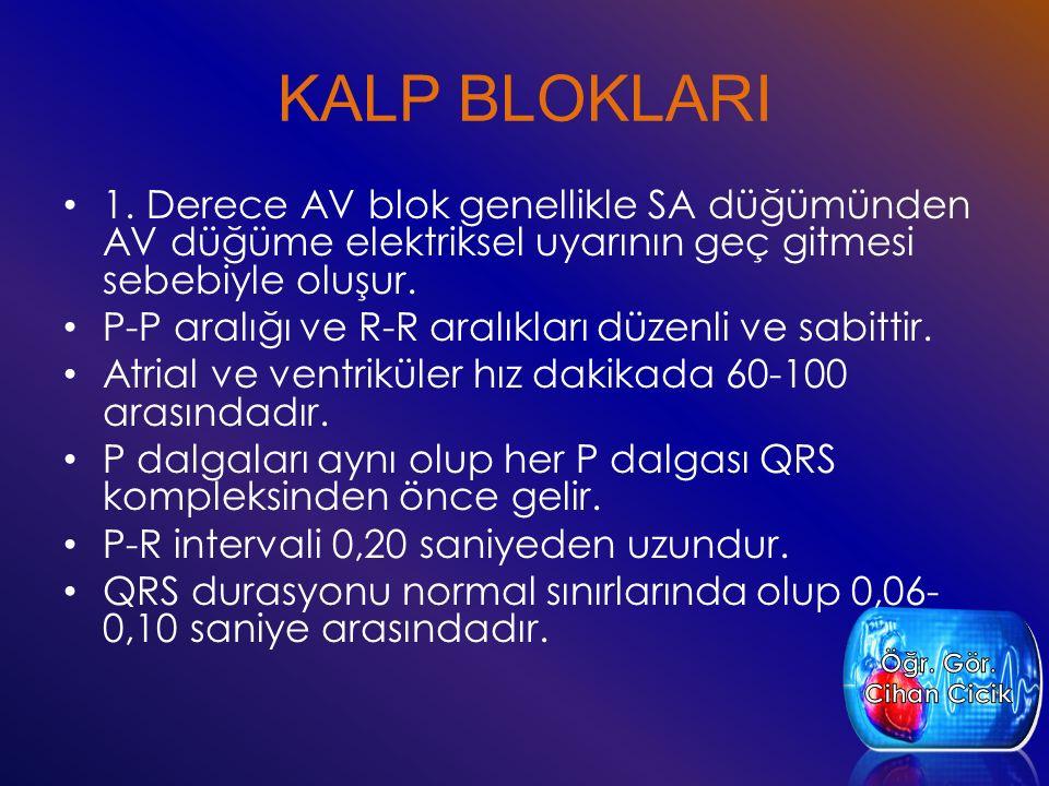 KALP BLOKLARI 1. Derece AV blok genellikle SA düğümünden AV düğüme elektriksel uyarının geç gitmesi sebebiyle oluşur. P-P aralığı ve R-R aralıkları dü