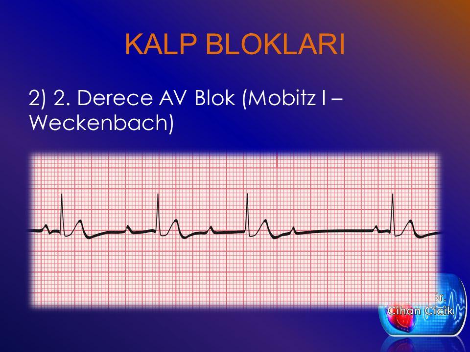 KALP BLOKLARI 2) 2. Derece AV Blok (Mobitz I – Weckenbach)