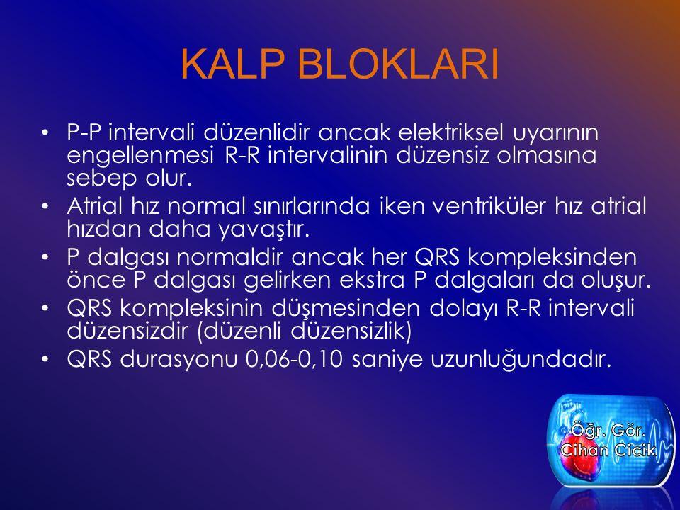 KALP BLOKLARI P-P intervali düzenlidir ancak elektriksel uyarının engellenmesi R-R intervalinin düzensiz olmasına sebep olur. Atrial hız normal sınırl