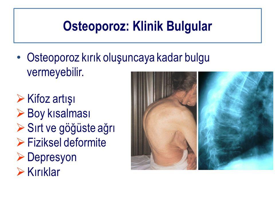 Osteoporoz: Klinik Bulgular Osteoporoz kırık oluşuncaya kadar bulgu vermeyebilir.  Kifoz artışı  Boy kısalması  Sırt ve göğüste ağrı  Fiziksel def