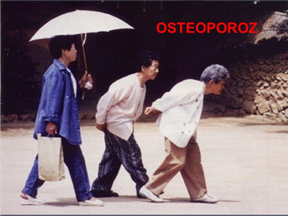 Normal kemikOsteoporoz kemik gücünde azalma Osteoporoz hastayı artan kırık riskine maruz bırakacak düzeyde kemik gücünde azalma ile karakterize bir iskelet hastalığıdır.