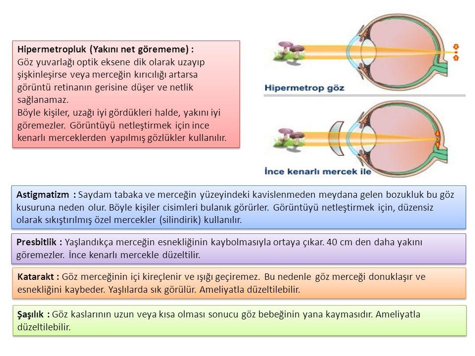 Hipermetropluk (Yakını net görememe) : Göz yuvarlağı optik eksene dik olarak uzayıp şişkinleşirse veya merceğin kırıcılığı artarsa görüntü retinanın gerisine düşer ve netlik sağlanamaz.