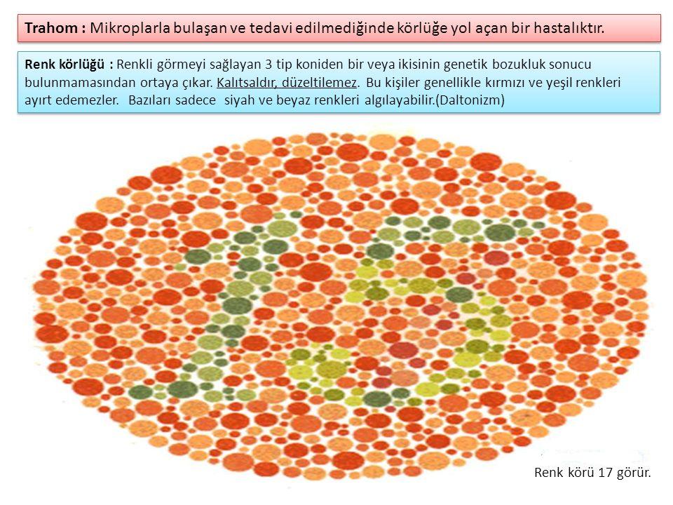 Renk körlüğü : Renkli görmeyi sağlayan 3 tip koniden bir veya ikisinin genetik bozukluk sonucu bulunmamasından ortaya çıkar.