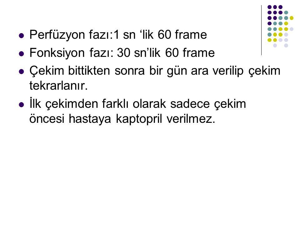 Perfüzyon fazı:1 sn 'lik 60 frame Fonksiyon fazı: 30 sn'lik 60 frame Çekim bittikten sonra bir gün ara verilip çekim tekrarlanır.