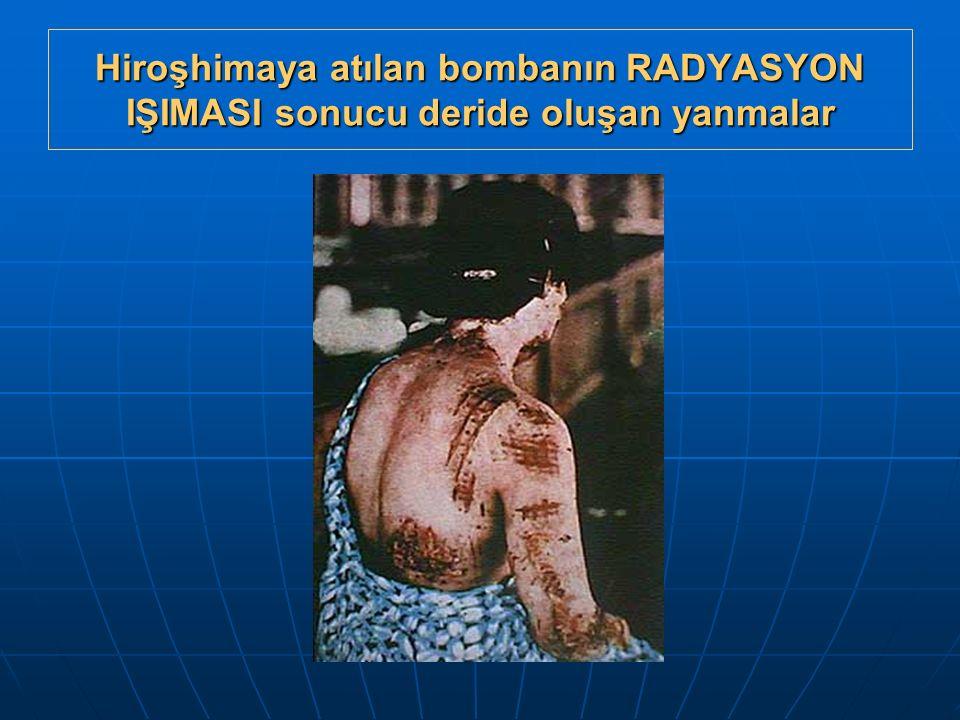 Hiroşhimaya atılan bombanın RADYASYON IŞIMASI sonucu deride oluşan yanmalar