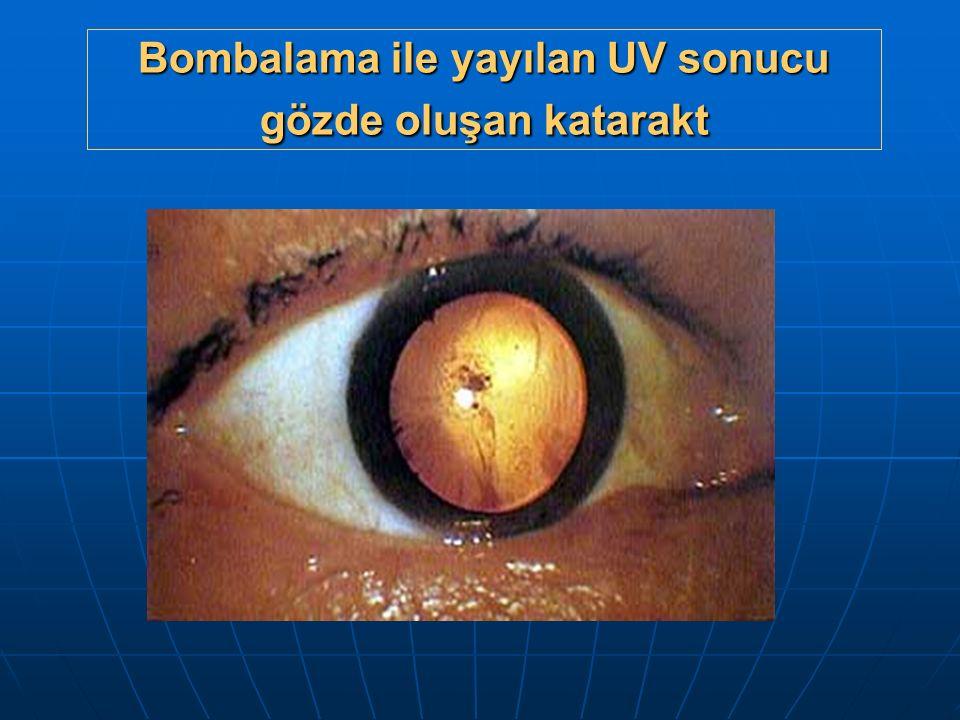 Bombalama ile yayılan UV sonucu gözde oluşan katarakt