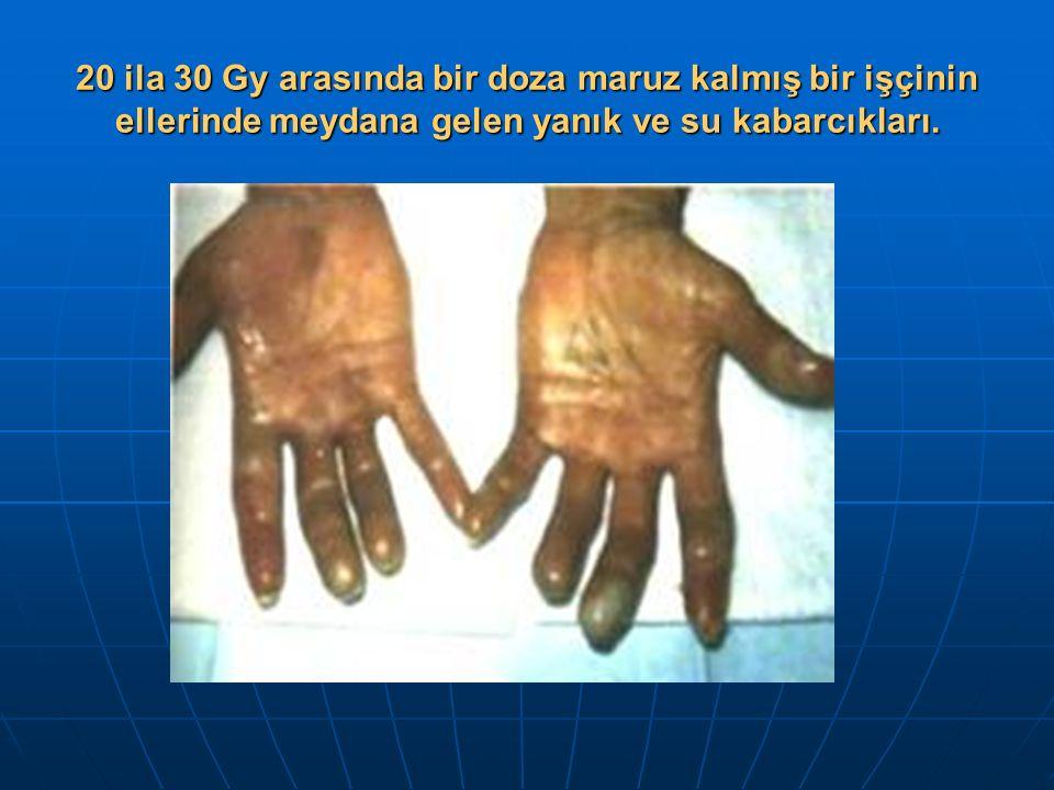 20 ila 30 Gy arasında bir doza maruz kalmış bir işçinin ellerinde meydana gelen yanık ve su kabarcıkları.
