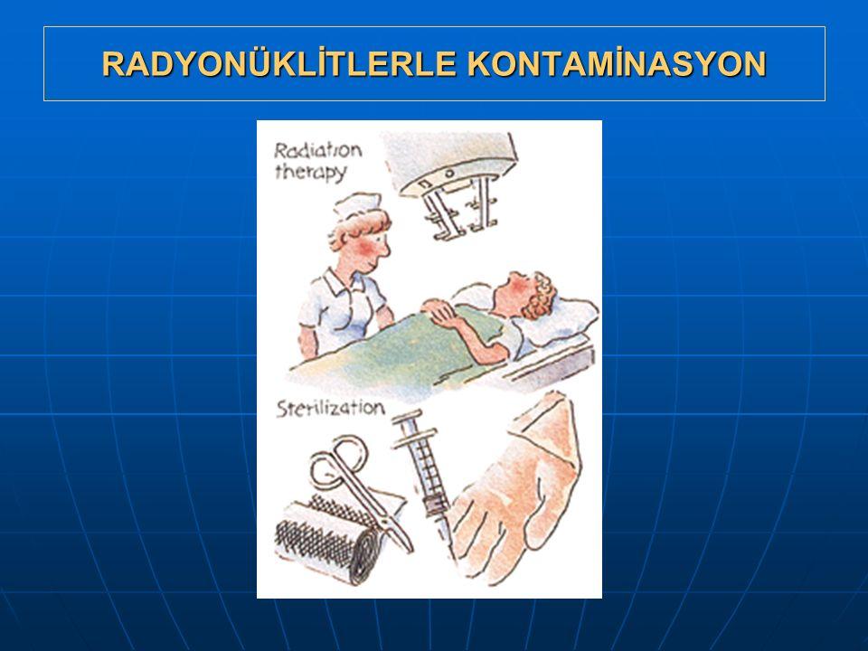 RADYONÜKLİTLERLE KONTAMİNASYON