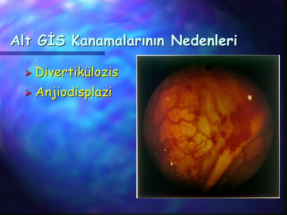 Alt GİS Kanamalarının Nedenleri  Divertikülozis  Anjiodisplazi