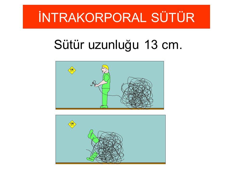 Sütür uzunluğu 13 cm. İNTRAKORPORAL SÜTÜR