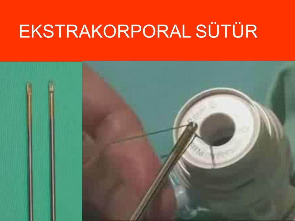 LOOP İPLE SÜTÜR  Serbest pediküller için uygundur  Ooferektomi  Apendektomi  Apliktörün içine yerleşmiş kayan bir düğümdür