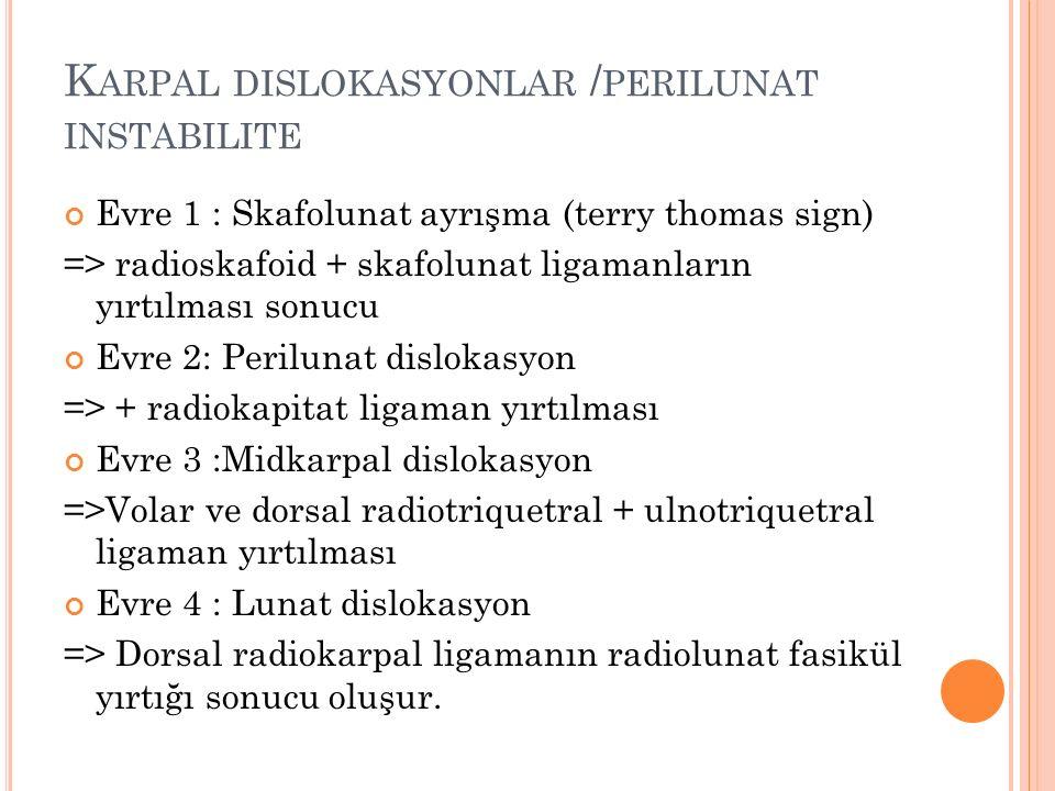 K ARPAL DISLOKASYONLAR / PERILUNAT INSTABILITE Evre 1 : Skafolunat ayrışma (terry thomas sign) => radioskafoid + skafolunat ligamanların yırtılması so