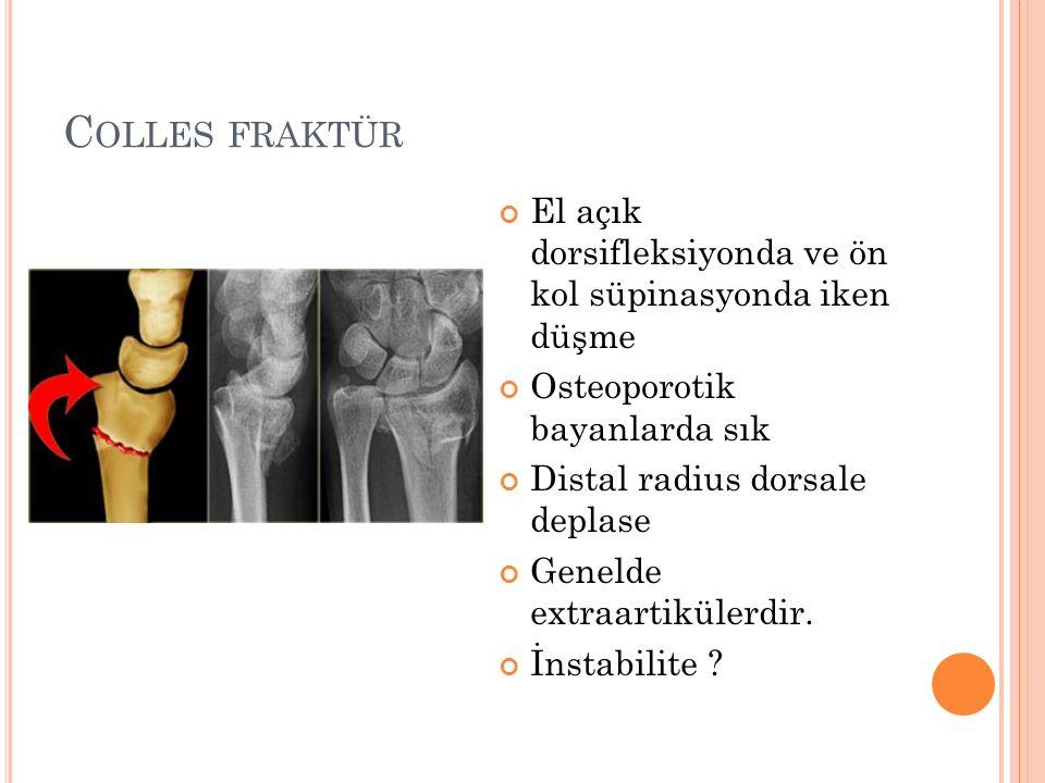C OLLES FRAKTÜR El açık dorsifleksiyonda ve ön kol süpinasyonda iken düşme Osteoporotik bayanlarda sık Distal radius dorsale deplase Genelde extraarti