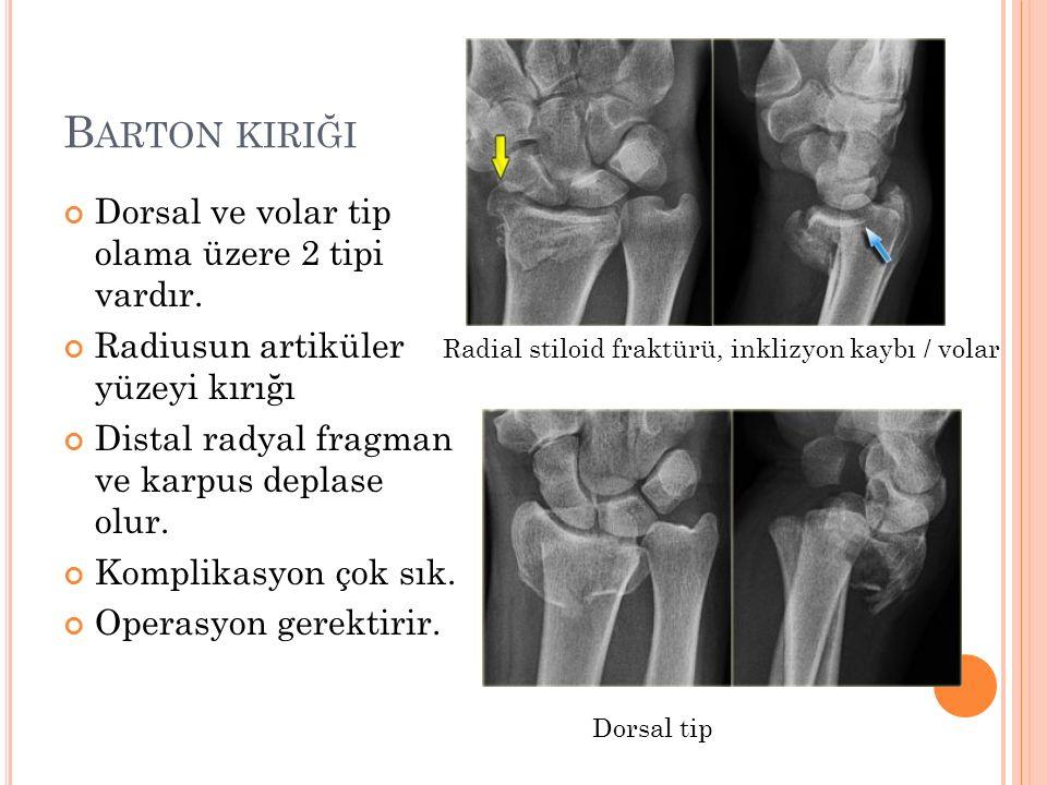 B ARTON KIRIĞI Dorsal ve volar tip olama üzere 2 tipi vardır. Radiusun artiküler yüzeyi kırığı Distal radyal fragman ve karpus deplase olur. Komplikas
