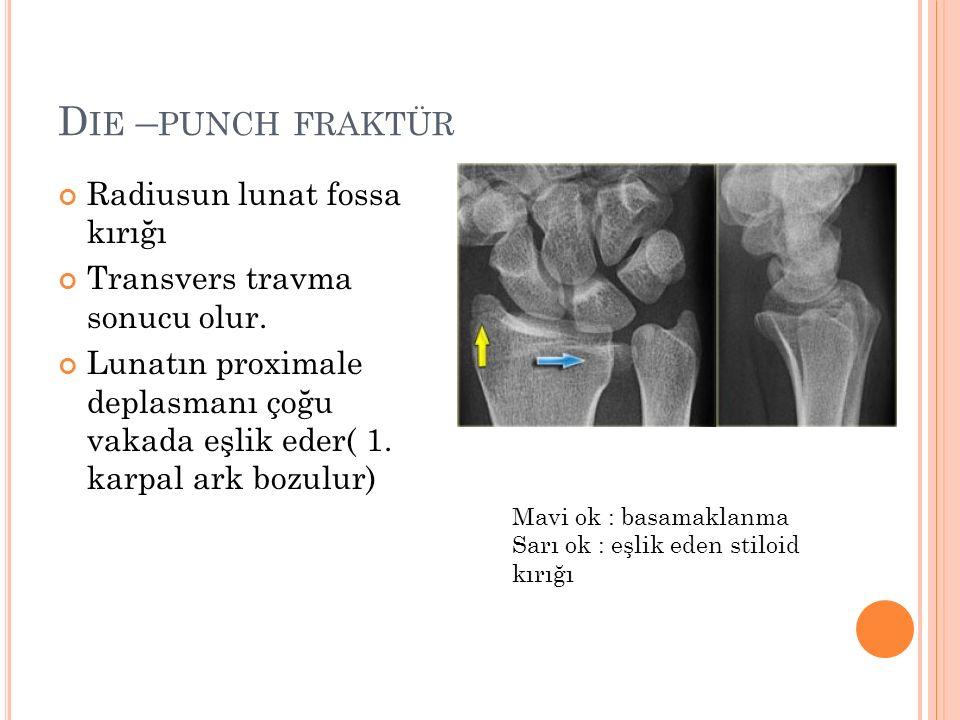 D IE – PUNCH FRAKTÜR Radiusun lunat fossa kırığı Transvers travma sonucu olur. Lunatın proximale deplasmanı çoğu vakada eşlik eder( 1. karpal ark bozu