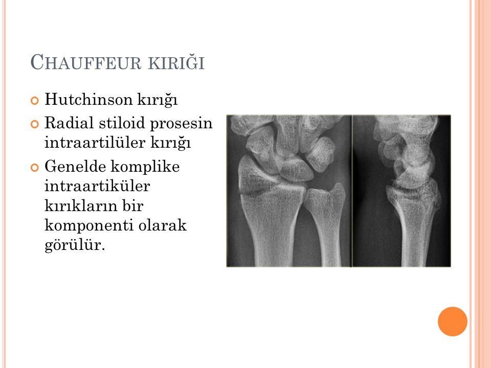 C HAUFFEUR KIRIĞI Hutchinson kırığı Radial stiloid prosesin intraartilüler kırığı Genelde komplike intraartiküler kırıkların bir komponenti olarak gör