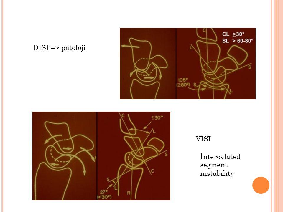 DISI => patoloji VISI İntercalated segment instability