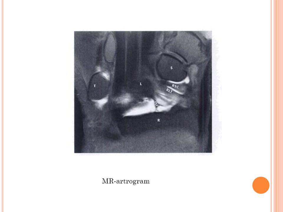 MR-artrogram