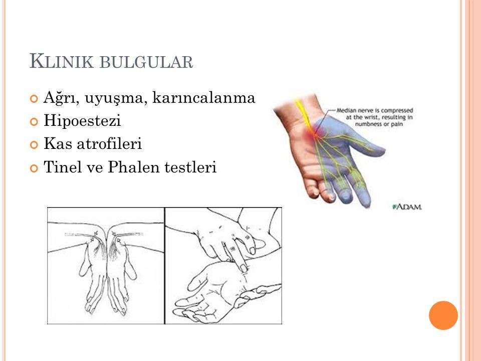 K LINIK BULGULAR Ağrı, uyuşma, karıncalanma Hipoestezi Kas atrofileri Tinel ve Phalen testleri