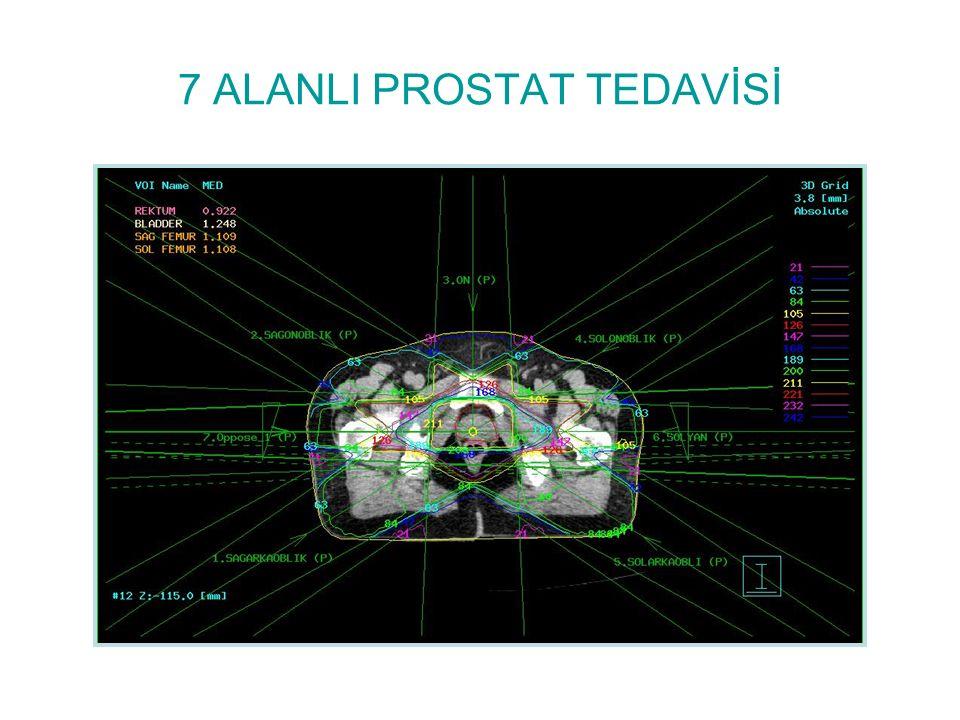 7 ALANLI PROSTAT TEDAVİSİ