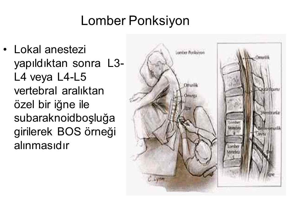 Lomber Ponksiyon Lokal anestezi yapıldıktan sonra L3- L4 veya L4-L5 vertebral aralıktan özel bir iğne ile subaraknoidboşluğa girilerek BOS örneği alın