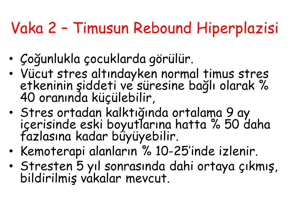 Vaka 2 – Timusun Rebound Hiperplazisi Çoğunlukla çocuklarda görülür. Vücut stres altındayken normal timus stres etkeninin şiddeti ve süresine bağlı ol