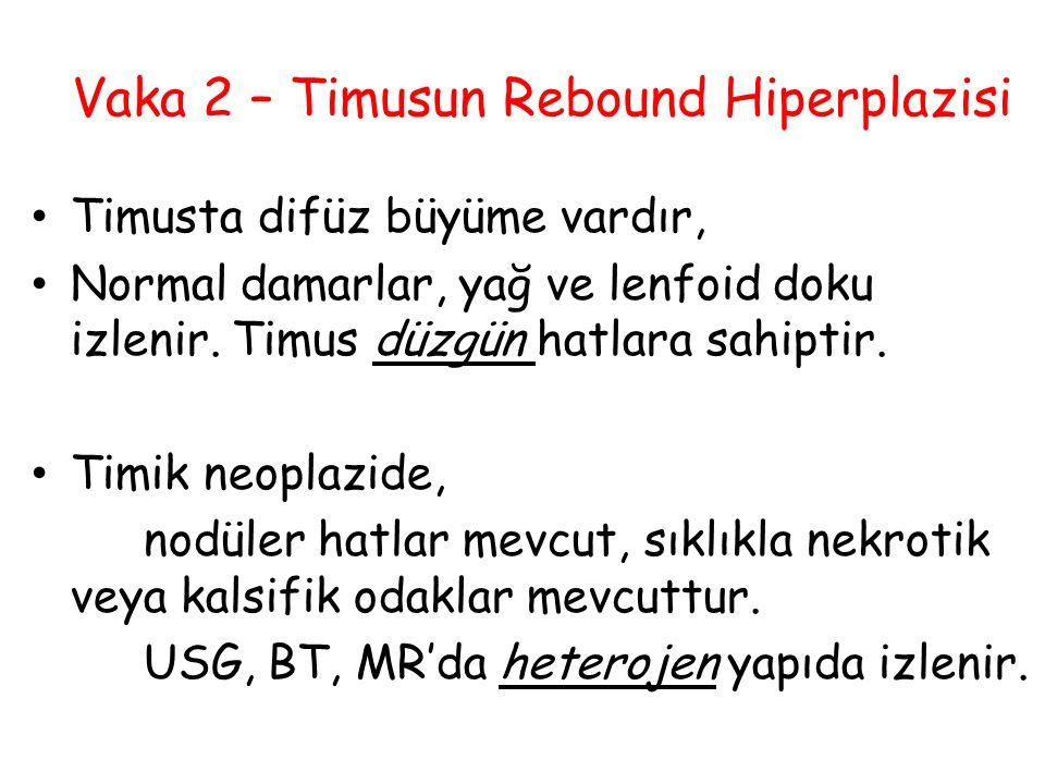 Vaka 2 – Timusun Rebound Hiperplazisi Timusta difüz büyüme vardır, Normal damarlar, yağ ve lenfoid doku izlenir. Timus düzgün hatlara sahiptir. Timik