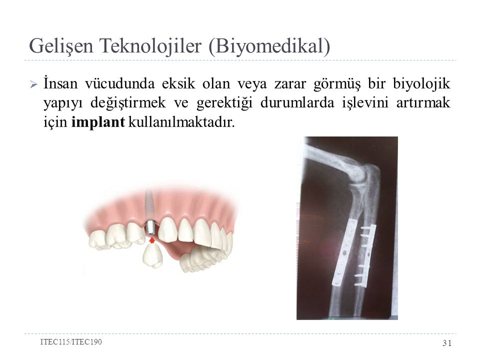 Gelişen Teknolojiler (Biyomedikal)  İnsan vücudunda eksik olan veya zarar görmüş bir biyolojik yapıyı değiştirmek ve gerektiği durumlarda işlevini artırmak için implant kullanılmaktadır.